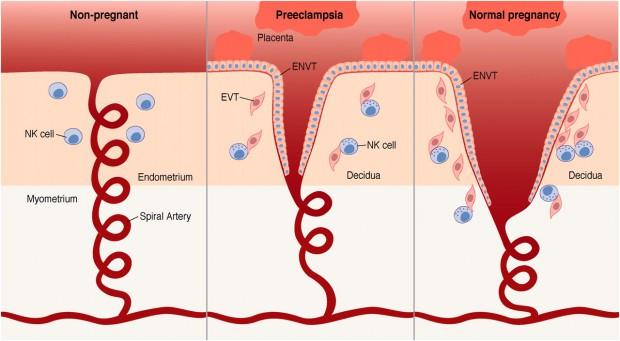 Maternicové NK bunky a remodelácia špirálových artérií pri zdravom tehotenstve vs. preeklampsia