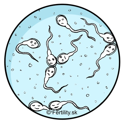 Fasting sperm Intermittant